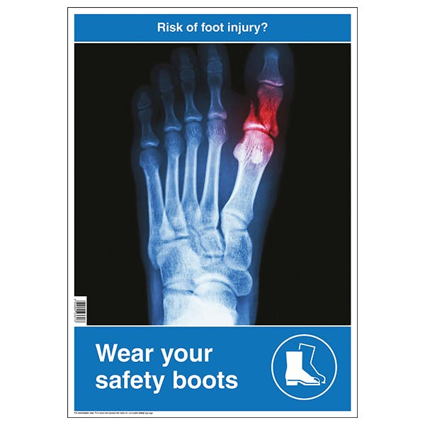 Risk Of Foot Injury Poster