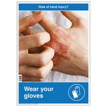 Risk Of Hand Injury Poster