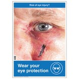 Risk Of Eye Injury Poster