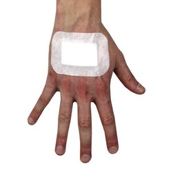 Adhesive Wound Dressings