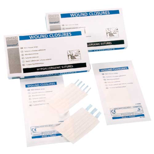 steroplast-wound-closure-strips_13499.jpg